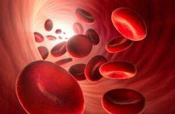 akute erwachsenen bein leukämie myeloische schmerzen