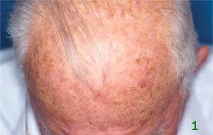 Hautkrebs Die Aktinische Keratose Deutsche Krebsgesellschaft